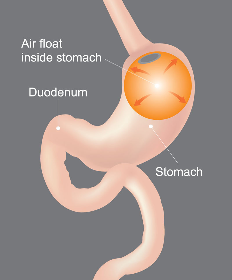 Gastric Balloon Weight Loss Surgery For Less Health Travel Guide