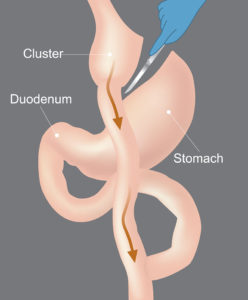 gastric bypass surgery for faster weight loss