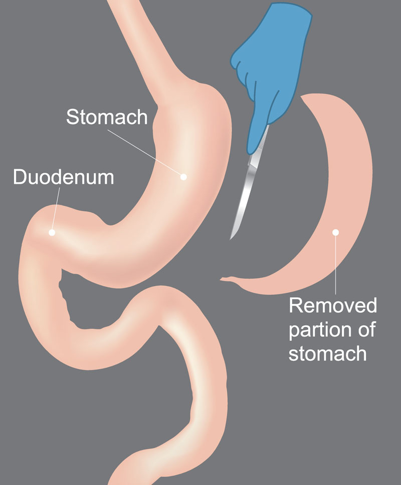 Gastric Balloon - 14 Ways It Will Affect You - Bariatric ...