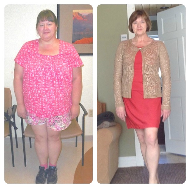 NCMGS-wls-before-and-after-weight-loss-surgery-health-travel-guide