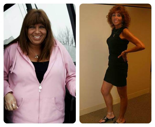shawnlynn-before-and-after-wls-healthtravelguide