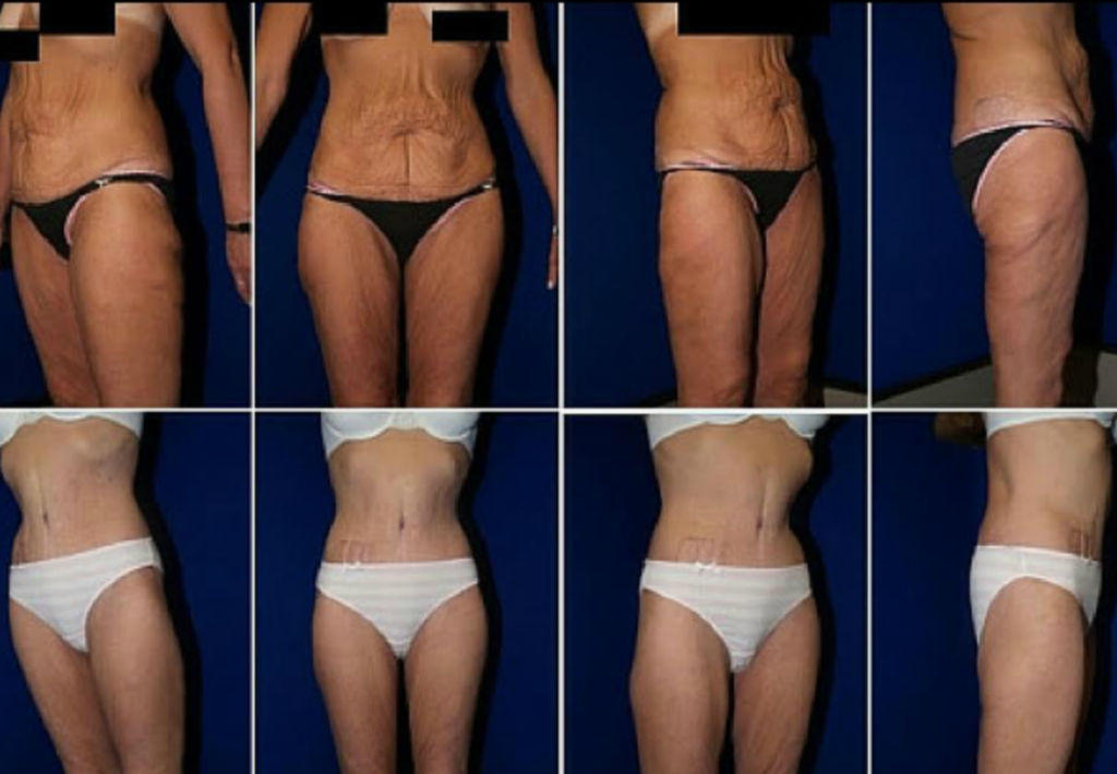 Plastic-surgery-tummy-tuck