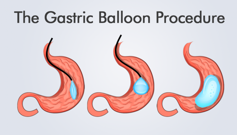 The-Gastric-Balloon-Procedures-HealthTravelGuide-760x434