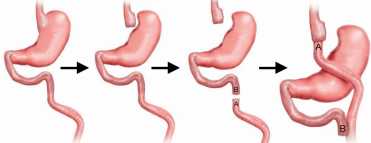 Gastric-bypass-step-by-step-1