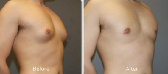 gynecomastia-surgery-results