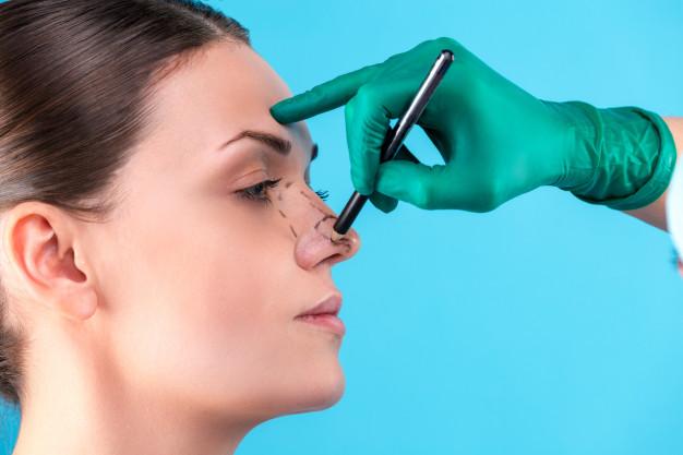 Nenäleikkaus-rhinoplastia